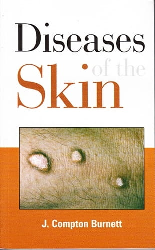 Diseases of the Skin - James Compton Burnett
