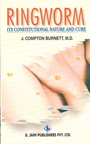Ringworm: Its Constitutional Nature and Cure - James Compton Burnett
